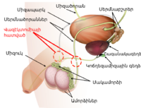 Vasectomy diagram-hy.png