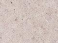Wuchereria bancrofti (YPM IZ 093336).jpeg