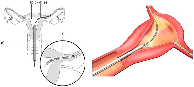 Essure procedure
