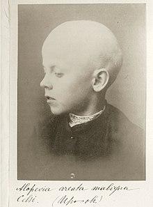 Alopecia areata maligna Celsi (Ir-ov).JPG