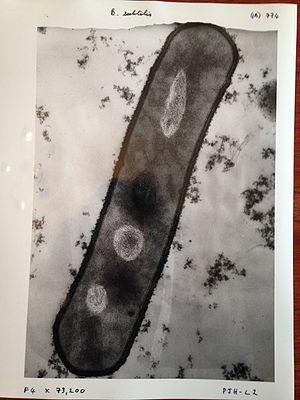 Electron microscope - Image of bacillus subtilis taken with a 1960s electron microscope.