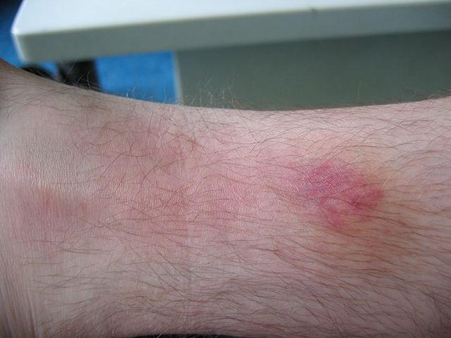 file:beet van daas incl bact infectie - wikimedia commons
