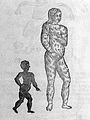 Black infant and hairy female figure Wellcome L0033057.jpg