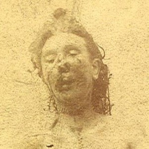 Mortuary photograph of Eddowes. Her lower face is severely mutilated