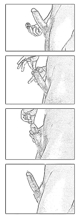 Condom - Illustrations showing how to put on a condom