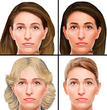 Forensic facial reconstruction - Wikipedia