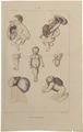 Homo sapiens - Div. afwijkingen - 1700-1880 - Print - Iconographia Zoologica - Special Collections University of Amsterdam - UBA01 IZ19600178.tif