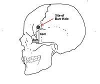 Lobotomy 1.jpg