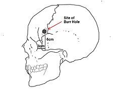 Lobotomy 1