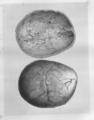 MSHWR Sabre fracture base cranium part I vol 2 pag 22.tiff