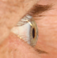 Perpendicular lateral view of a right eye.tif
