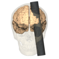 Phineas Gage injury - anterior view.png