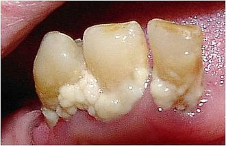 Dental plaque - Heavy plaque