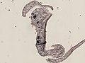 Pleioplana atomata (YPM IZ 073814) 11.jpeg