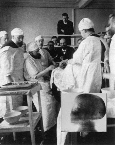 Surgical removal of a bullet whose location was diagnosed with X-rays (see inset) in 1897 Professor-Karl-Gustav-Lennander-in-1897-removing-a-pistol-bullet-from-the-occipital-lobe-of-the-brain-in-a-young-man-aft.jpg