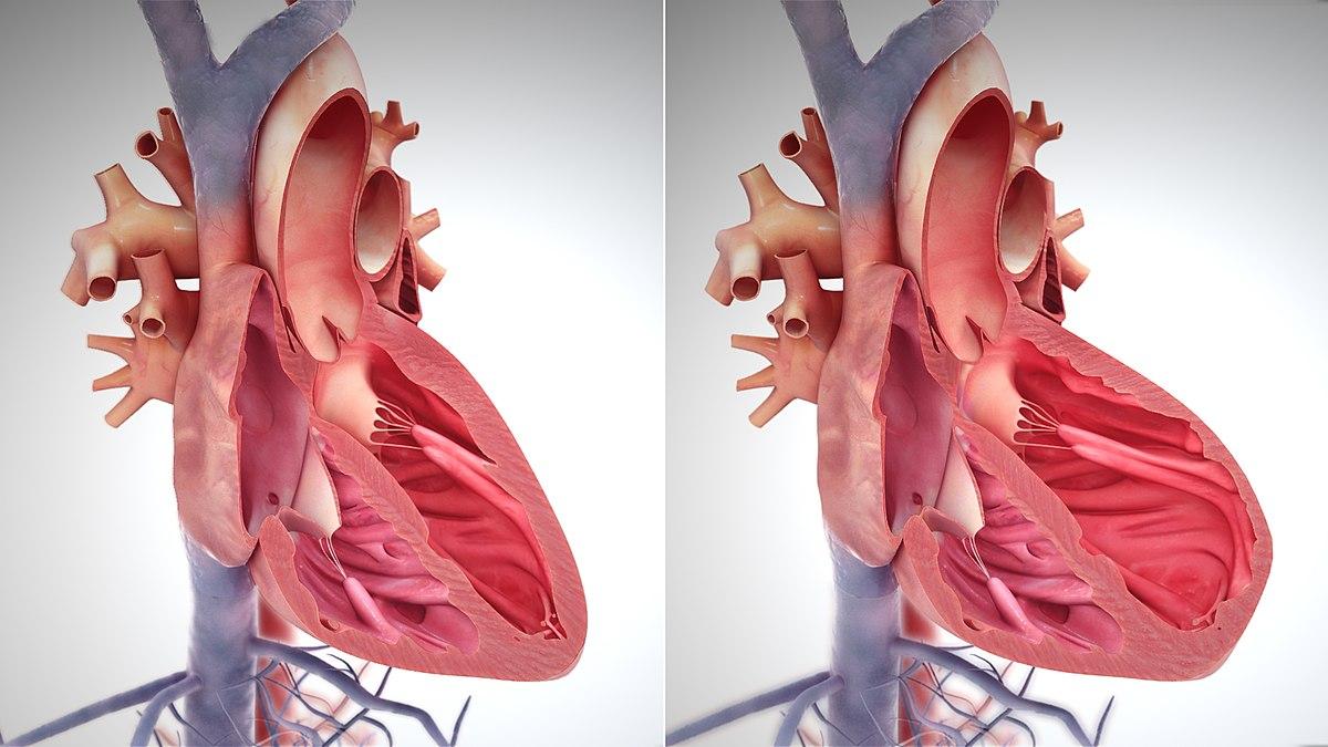 lėtinis širdies nepakankamumas ir hipertenzija)