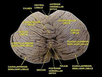 Cerebellar vermis - Image: Slide 2AST