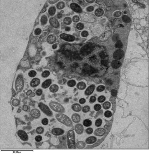 TEM image of L. pneumophila within a phagocytic cell TEM image of Legionella pneumophila within a phagocytic cell.tif