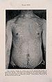 Tinea Versicolor; rash on trunk, c 1905 Wellcome V0010351ER.jpg