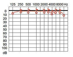 meaning of audiogram
