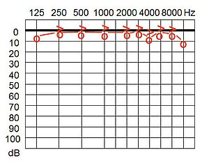 Hearing range - An audiogram showing typical hearing variation from a standarized norm.
