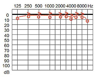 Audiogram - An audiogram showing typical slight hearing variation.