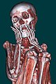 US Navy 110427-N-YY999-002 A CT scan of a Peruvian mummy taken at Naval Medical Center San Diego provides details of the muscular and skeletal stru.jpg