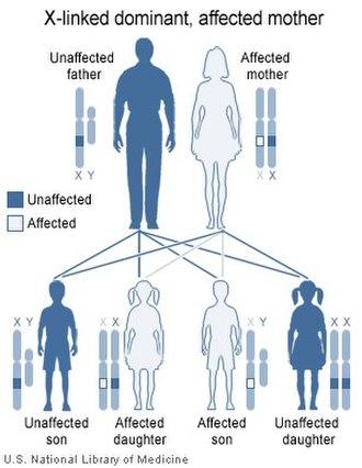 X-linked dominant inheritance - Image: Xlink dominant mother