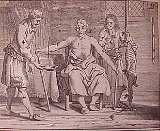 Bloodletting - Ioannis Sculteti, Armamentium Chirugiae, 1693 — Diagrammed transfusion of sheep's blood