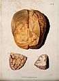 A dissected brain; and two sections of diseased brain. Colou Wellcome V0009780.jpg