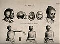 Abnormal heads and skulls, fractured and bandaged clavicle Wellcome V0016826.jpg