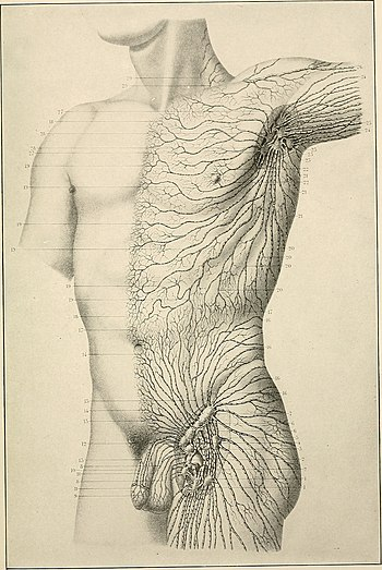 American practice of surgery; a complete system of the science and art of surgery (1906) (14584335740).jpg