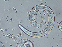"""Angiostrongylus vasorum"" (male) from canine blood sample."
