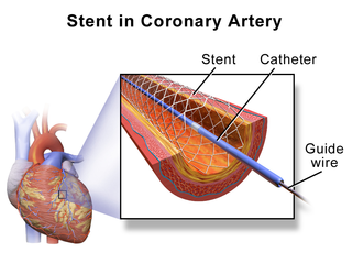 Stent metal or plastic tube inserted into the lumen of an anatomic vessel or duct to keep the passageway open, and stenting is the placement of a stent.