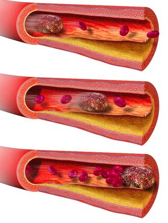 Embolus - Illustration depicting embolism from detached thrombus