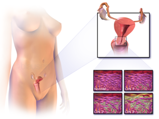 Cervical cancer cancer arising from the cervix, caused by a sexually transmitted virus