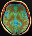 Brain MRI 124054 rgbca.png