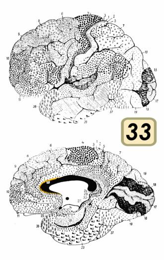Brodmann area 33 - Brodmann area 33 (shown in orange)