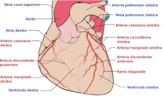 agenesia della valvola polmonare