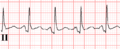 De-Ptadepressie (CardioNetworks ECGpedia).png