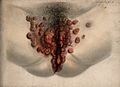 Female genitalia showing severely diseased tissue. Watercolo Wellcome V0009927.jpg
