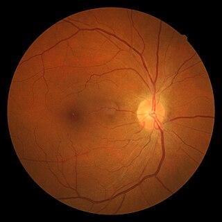 Hypertensive retinopathy Human disease