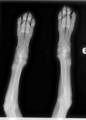 """Hypertrophic osteodystrophy - Figure 3:  X-Ray image of HOD presentation in 4-month-old Weimaraner puppy.  Note """"moth-eaten"""" appearance of metaphyses."""