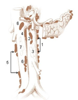 Paraaortic lymph nodes - Left Lumbar Lymph Nodes (Paraaortic Lymph Nodes) 1. Lateral aortic 2. Preaortic 3. Postaortic 4. Intermediate Lumbar  Right Lumbar Lymph Nodes (Paracaval Lymph Nodes) 5. Lateral caval 6. Precaval 7. Postcaval