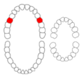 Maxillary second premolars01-01-06.png