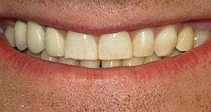 Photograph of mild fluorosis. Most noticeable ...