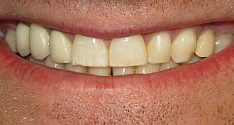 Water fluoridation - A mild case of dental fluorosis, visible as white streaks on the subject's upper right central incisor.