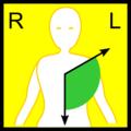 Normal cardiac axis (ECG).png