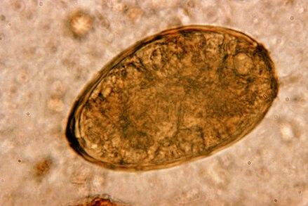 paragonimiasis and tuberculosis