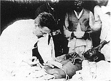 Paul-Louis Simond injecting plague vaccine June 4th 1898 Karachi.jpg